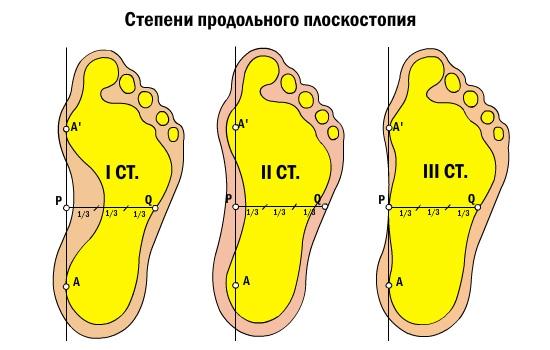 Как сделать плоскостопию 1 степени