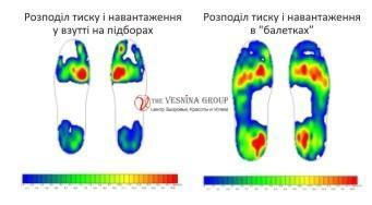 Навантаження стопи у взутті