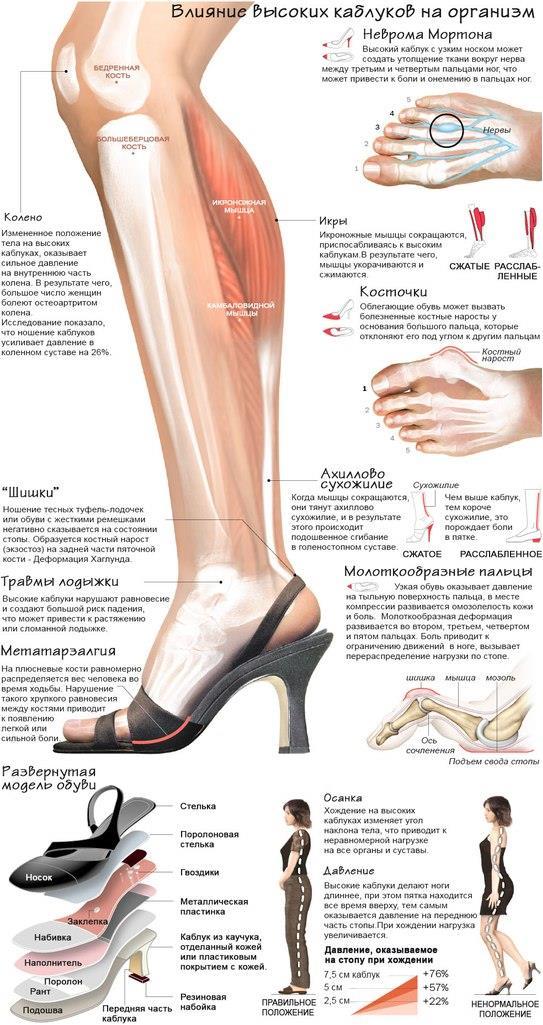 Неврома мортона, деформация пальцев стопы, косточки на ногах. Диагностика и лечение стоп