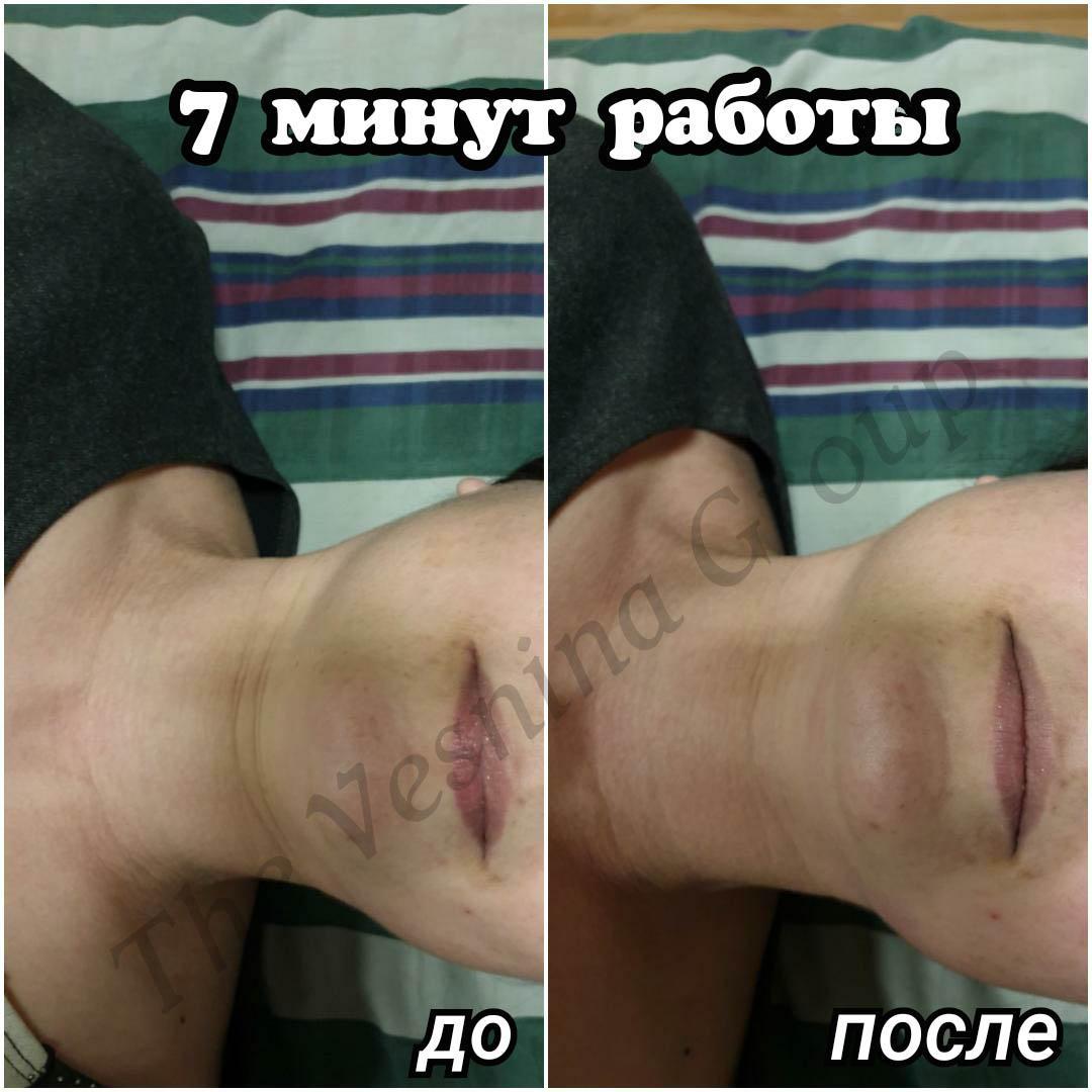 Естетичне моделювання обличчя