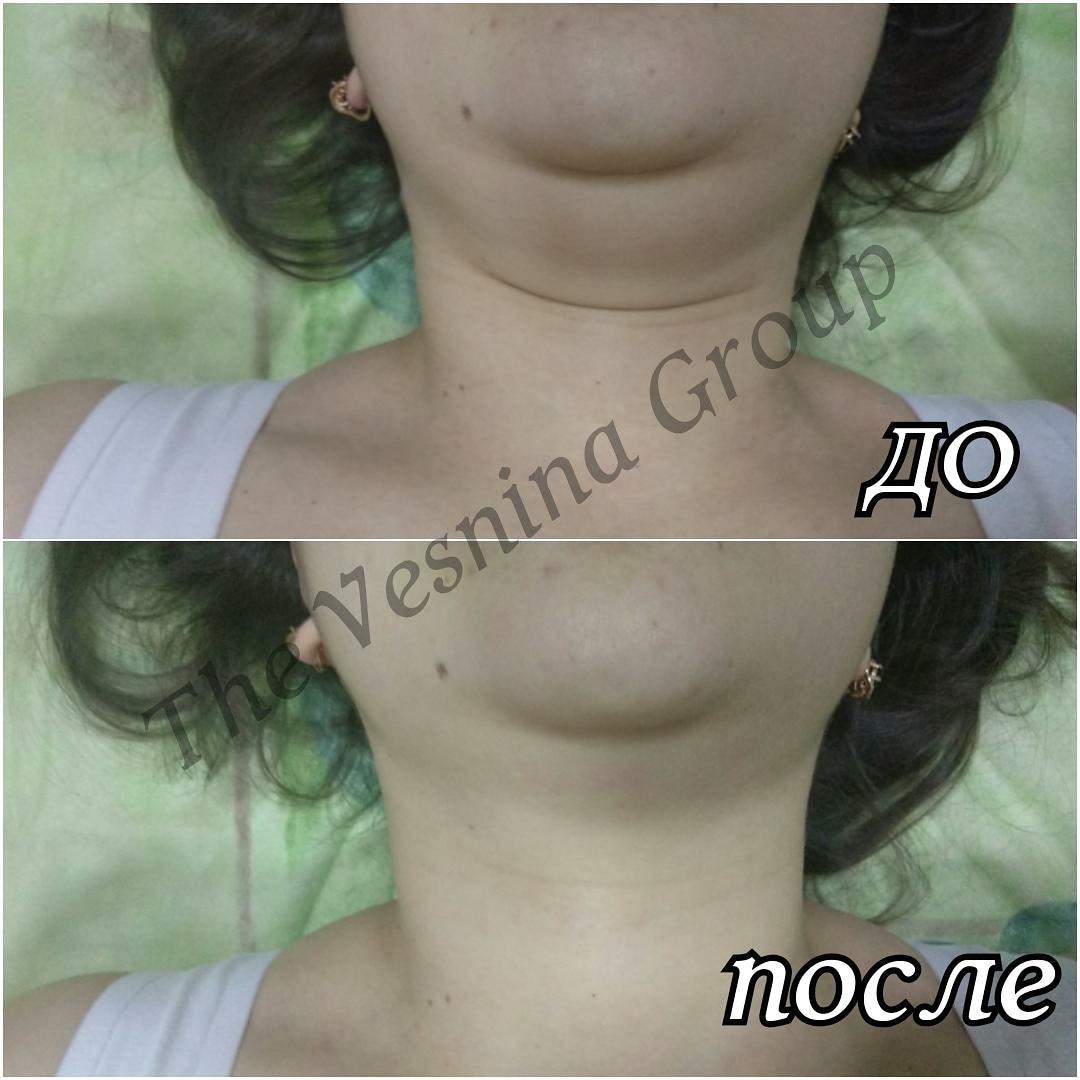 Эстетическое моделирование лица
