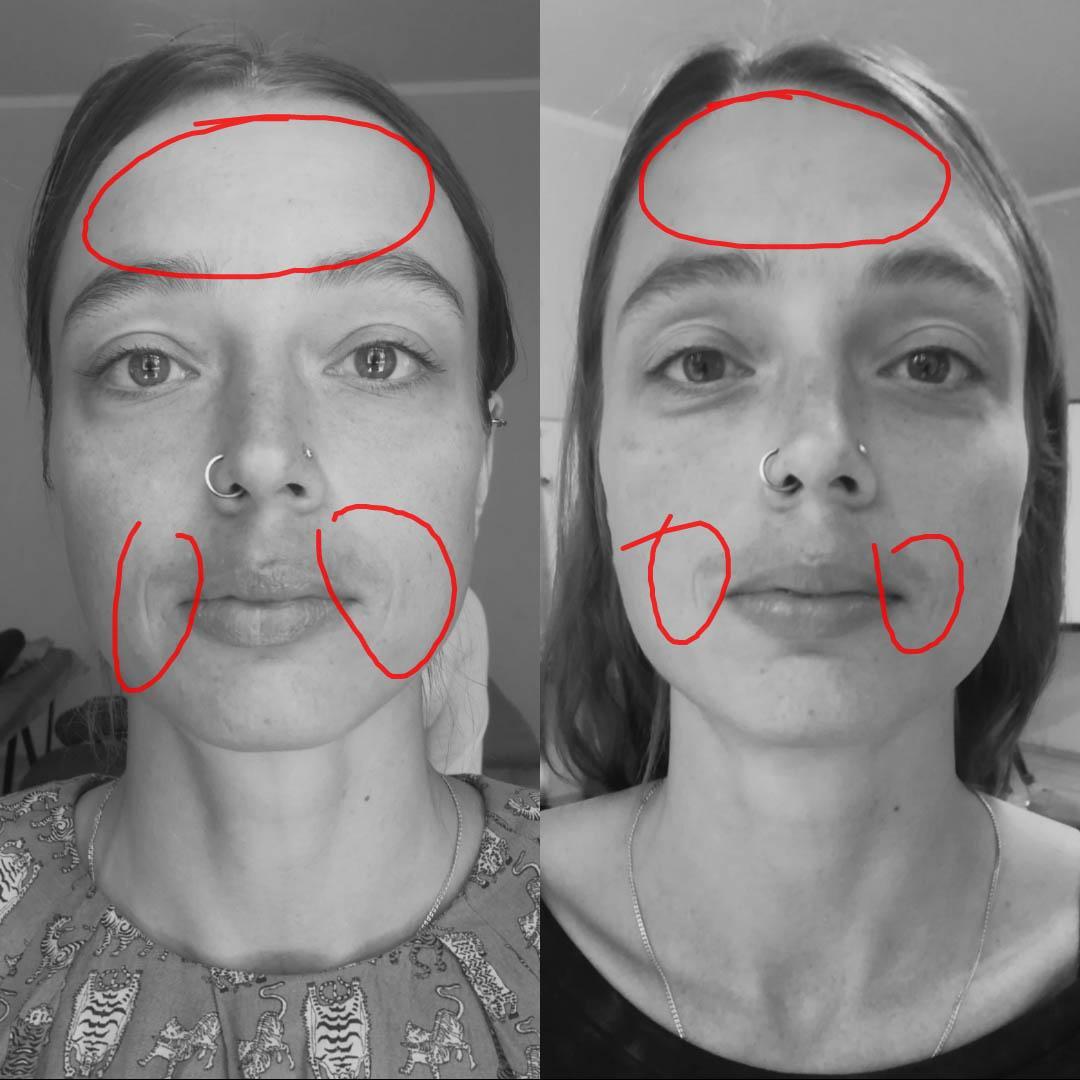 Краниальная эстетика-1. Моделирование лица и области декольте