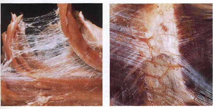 Міофасціальні тканини