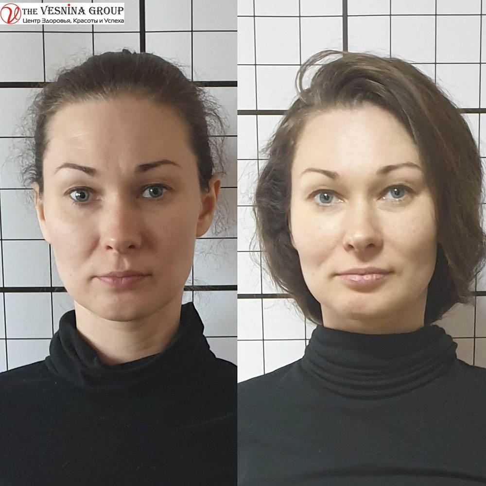 Краніальна естетика до та після