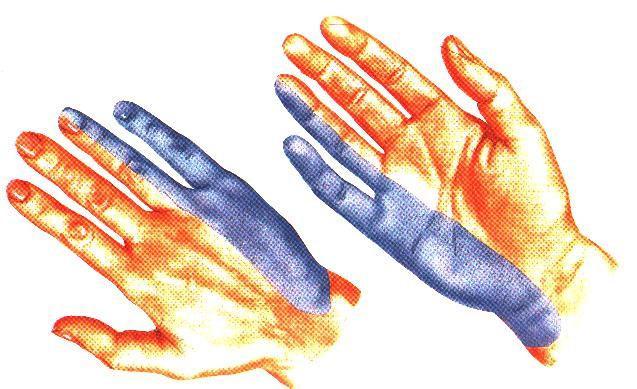 Область кожной иннервации локтевого нерва