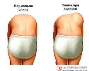 Лікування сколіозу