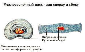 Межпозвоночная грыжа и ее лечение