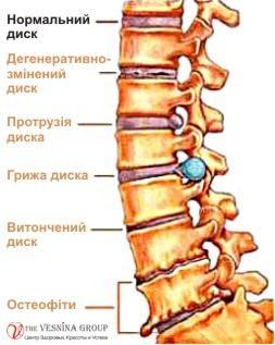 Лікування остеохондрозу хребта