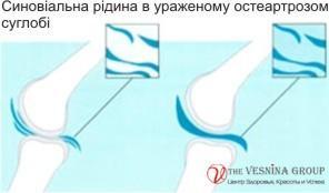Сучасні методи лікування остеоартрозу