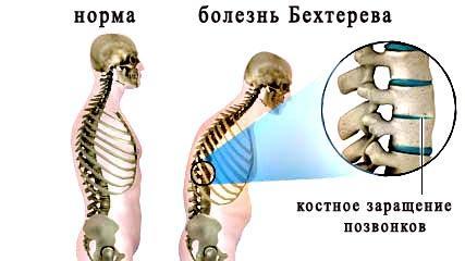 Локтевой сустав и болезнь бехтерева избавиться от суставных болей