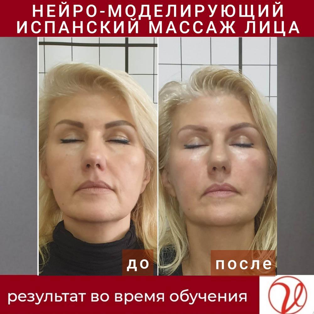 Нейро-моделюючий іспанський масаж обличчя до та після