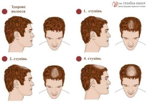Алопеція (випадіння волосся)