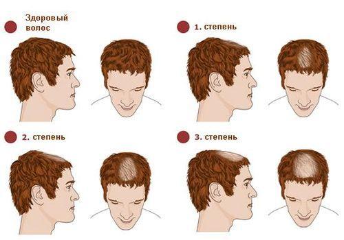 Алопеция (выпадение волос)