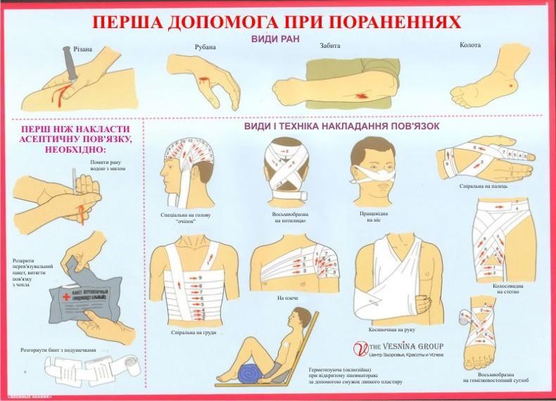 Перша допомога під час поранень