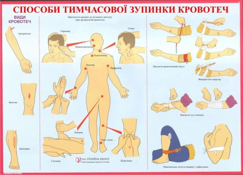 Способи тимчасової зупинки кровотеч
