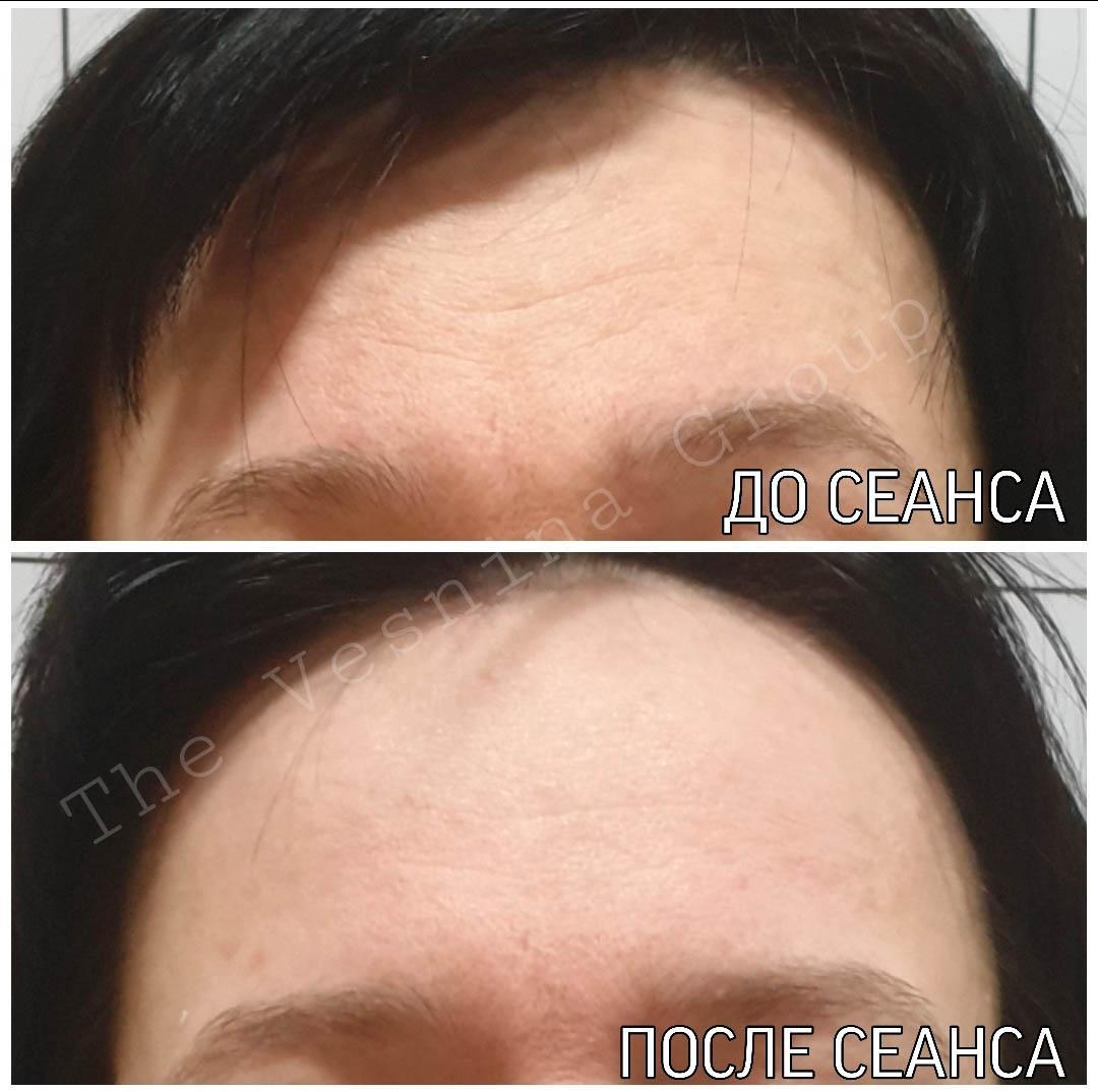 Остеопатична корекція обличчя