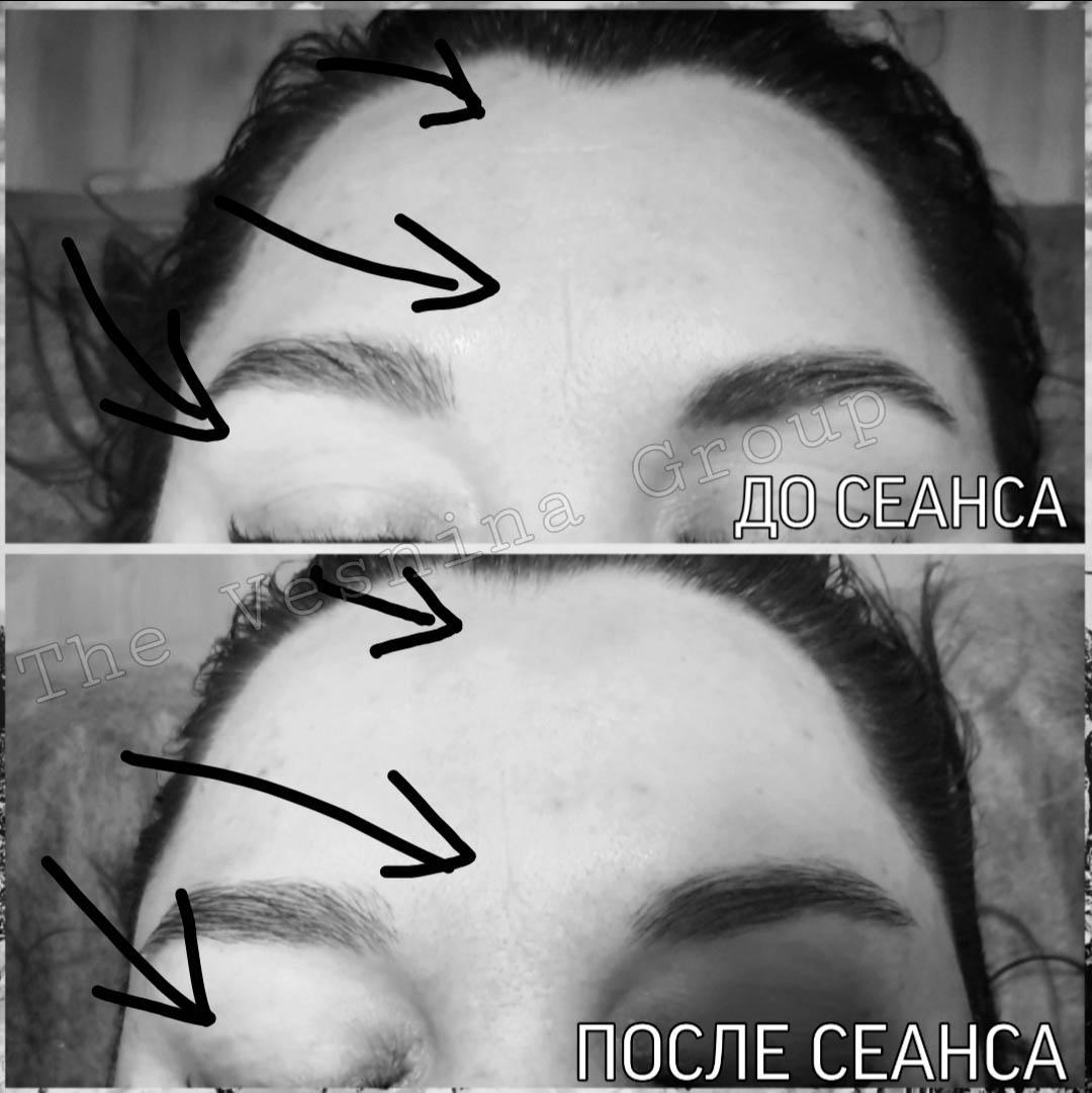 Іспанський масаж обличчя до та після