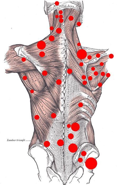 Гипертонус мышц или триггерные точки