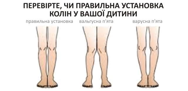 Правильна установка колін у дитини