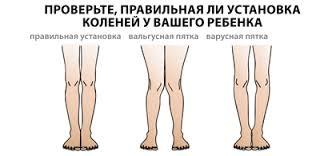 Правильная установка коленей у ребенка
