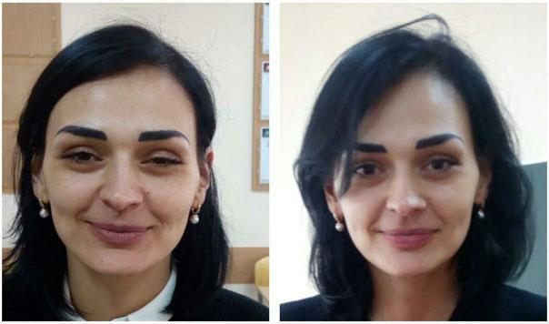 Позитивные изменения после нескольких сеансов эстетического моделирования лица