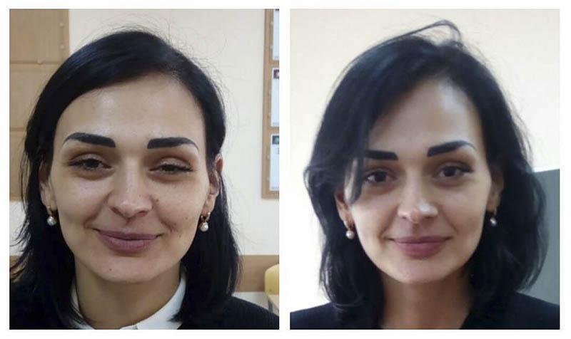 Остеопатична естетика обличчя