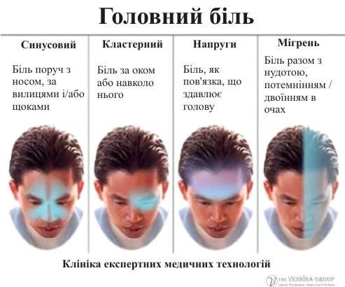 Види головного болю