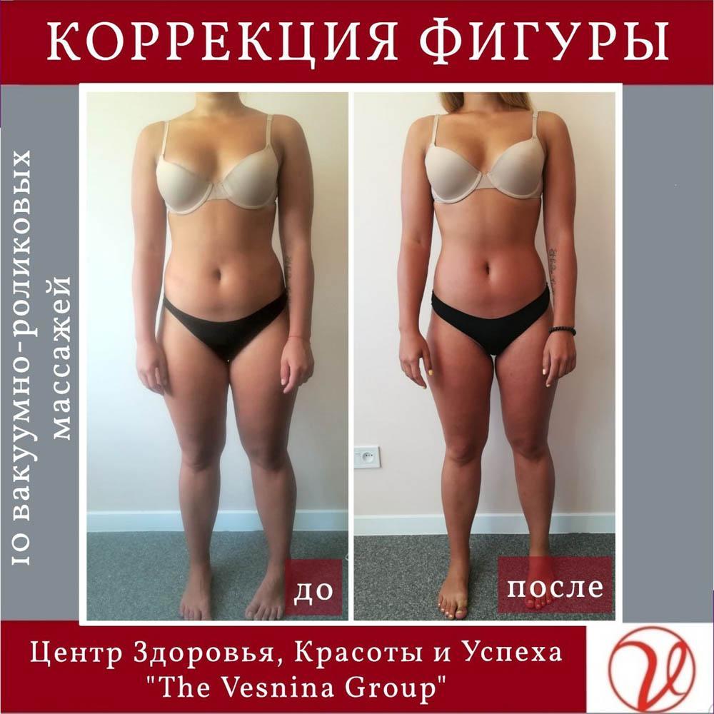 Ефект від проходження курсу вакуумно-роликового масажу