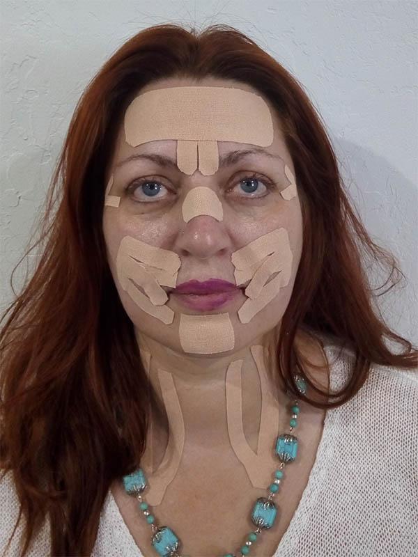 Тейпування обличчя та шиї