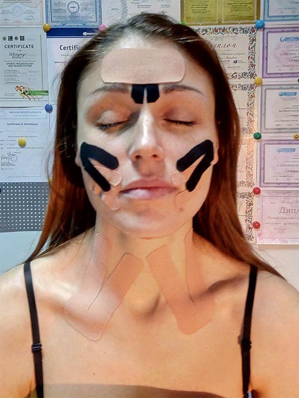 Кінезіотейпування обличчя