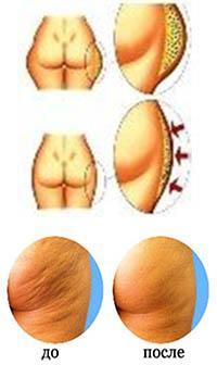 Вакуумный аппаратный массаж - до и после